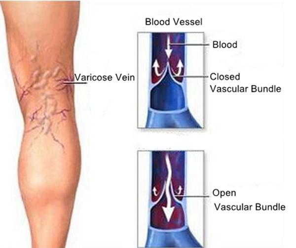در واریس رگهای خونی پا متورم میشوند و یا شبکههای عنکبوتی مانند به رنگ آبی یا قرمز در پا مشاهده میگردند