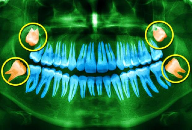 در انتهایی ترین نقطه هر فک یعنی پس از دندانهای آسیاب، نزدیک به لوزهها دندانهای عقل میرویند