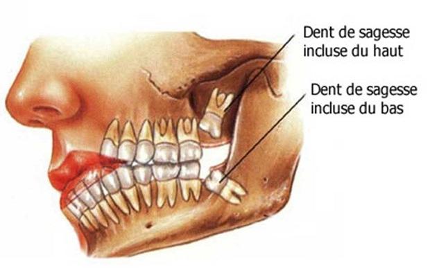 درد دندان عقل به طور عادی در قسمت انتهایی دهان یعنی در ناحیه پشت سر احساس میشود