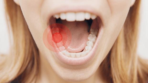 دندان درد ناشی از التهابات قسمت مرکزی دندان یا همان پالپ میباشد