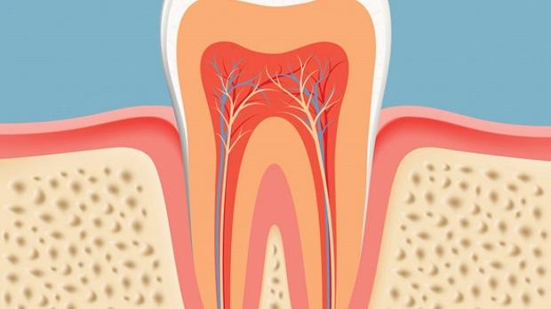 آبسه دندان یک نوع چرک و عفونت است که در داخل دندانها و یا لثه به وجود میآید