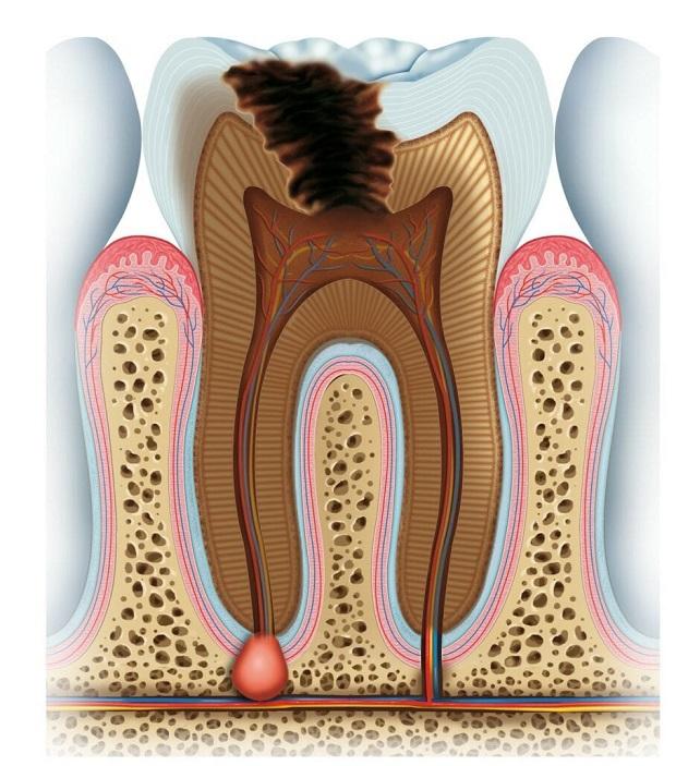 باکتریهای موجود در آبسه وارد جریان خون میشوند و استخوان را آلوده میکنند