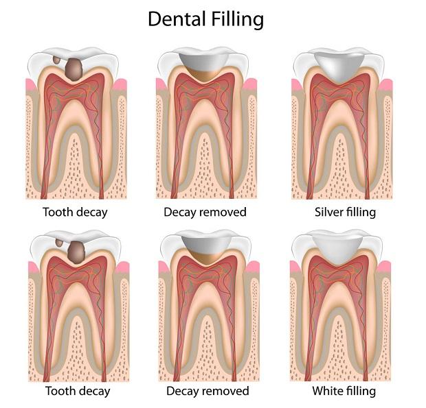 دندانهای سوم به بعد که به قسمت انتهایی دهان نزدیک تر هستند در صورتی که دچار خرابی و مشکلات شوند ممکن است به التهاب لثه مبتلا شوند