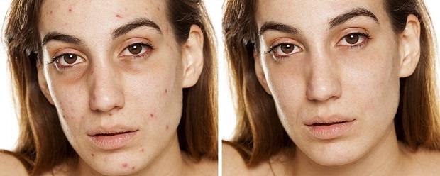 بروز مشکلات پوستی میتواند از عوارض کم خوابی باشد