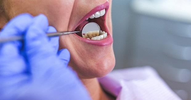 برای درمان موقت آبسه دندان میتوان از داروهایی مانند آسپرین و ایبوپروفن استفاده کرد