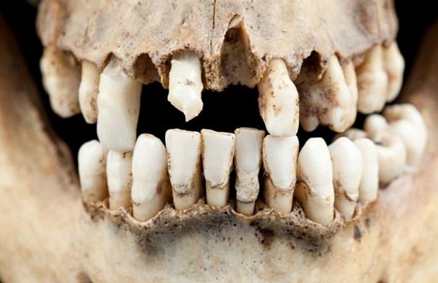نخستین مرتبه یک پادشاه مصری از دندان مصنوعی استفاده کردکه به کمک روش ایمپلنت دندان این کار انجام شد