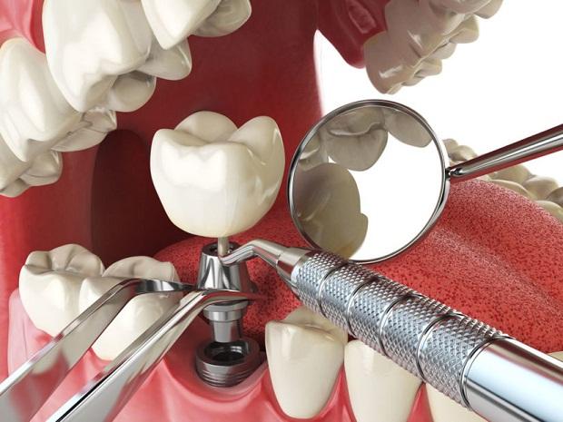 گاهی به دلیل ضعف استخوان فک و یا تراکم کمی استخوان فک نیاز است که پیوند استخوان صورت گیرد