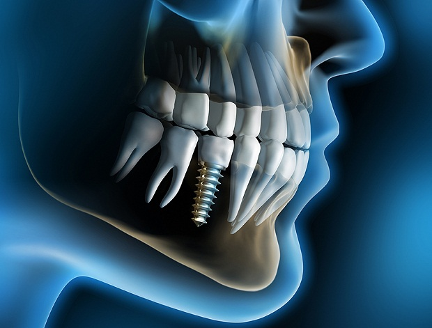 در روش Endosteal ایمپلنتهای دندانی در استخوان فک قرار میگیرند. معمولا جنس موادی که در این روش به کار برده میشود تیتانیوم است. پیچها و گیرهها همه از تیتانیوم ساخته میشوند.