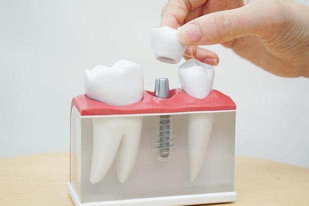 کاشت دندان به روش ایمپلنت یعنی استفاده از یک پیچ تیتانیومی که در استخوان فک قرار میگیرد و دندان بر روی آن پیچ بسته شده و همانند یک دندان طبیعی مورد استفاده قرار میگیرد.