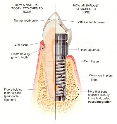 یکی دیگر از مشکلات این روش این است که این روش درمانی ممکن است به هر آن چه که در اطراف دندان از بین رفته، وجود دارد آسیب وارد شود