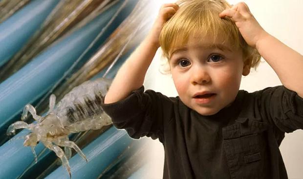 هر ساله بین ۶ الی ۱۲ میلیون کودک در مدارس به شپش مبتلا میشوند