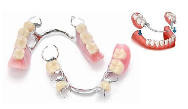 جنس این گیرهها به طور معمول فلز است. به همین دلیل چهره ناخوشایندی در دهان خواهند داشت.