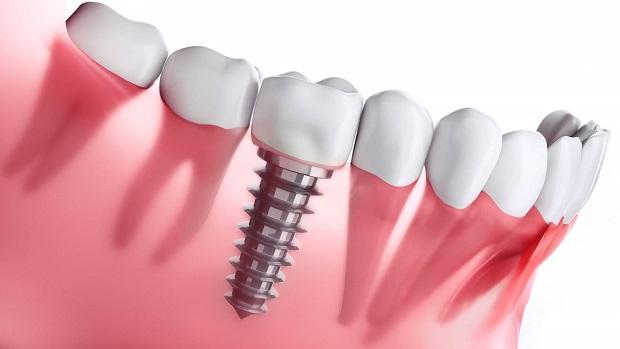 پس از کاشت ایمپلنت شما صاحب یک دندان بسیار طبیعی هستید که درست مانند دندان خودتان نیاز به مراقبت و نگهداری دارد