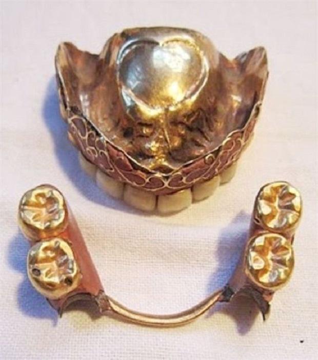 شکر عامل اصلی خرابی و پوسیدگی دندان در قرن ۱۸ میلادی بود