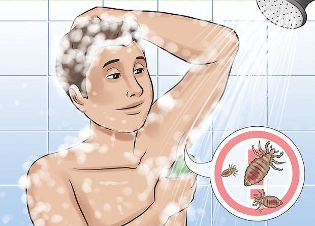 زمانی که شپش بدن برای مدت زمان زیادی در پوست بدن باقی ماند و عفونت و زخم ایجاد کرد با علائمی میتوان به این بیماری پی برد.