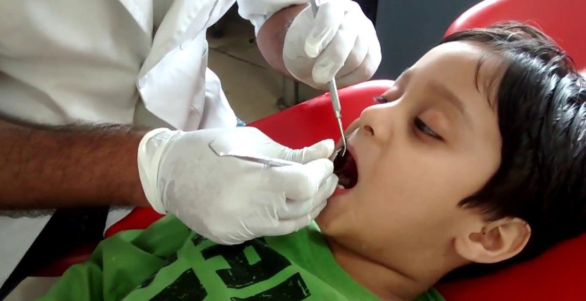 عصب کشی دندان کودک