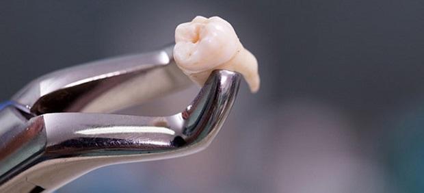 دندانی عقلی که کامل از لثه خارج شود را به راحتی میتوان کشید