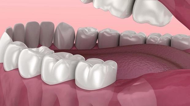 گاهی بدون نیاز به استخراج میتوان درد دندان عقل را مهار کرد