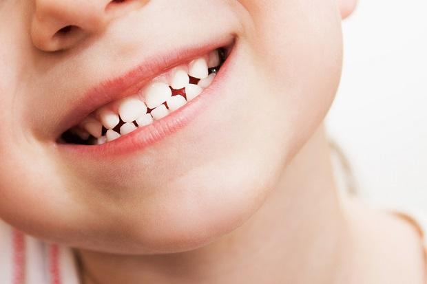 افتادن دندان شیری از حدود شش سالگی آغاز میشود.