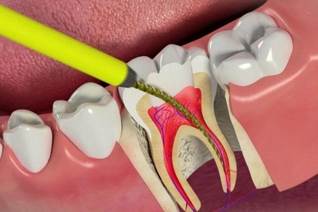 عصب کشی دندان کودک شامل از بین بردن پالپ و اعصاب دندان است