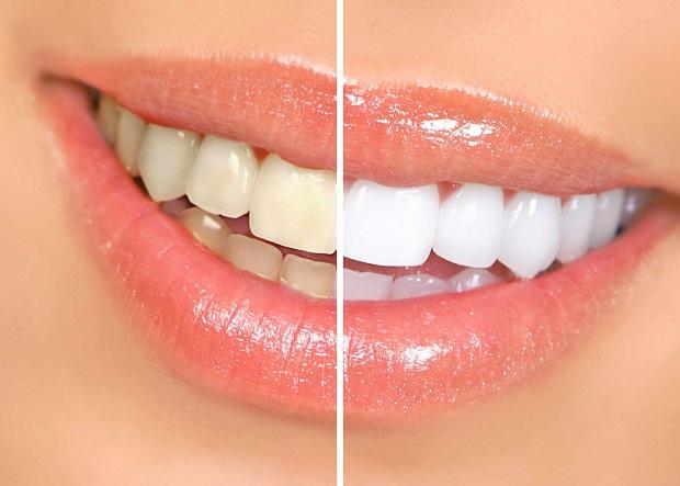 با مراقبت از دندان اثر جرم گیری را طولانی تر کنیم