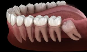 عصب کشی دندان عقل