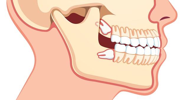 دندان عقل و ریشه آن در طی رشد فضا را برای دیگر دندانها کوچک کرده و سبب میشود که به دندانهای دیگر آسیب جدی وارد شود.