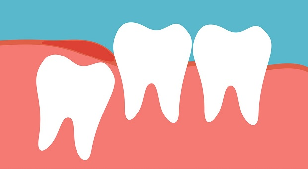 دندان عقل دندانی است که در اغلب موارد نیاز به تخلیه خواهد داشت