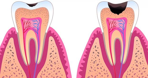 پوسیدگی دندان هنگامی اتفاق میافتد که غذاهای حاوی کربوهیدرات و انواع قندها بین دندان گیر کند