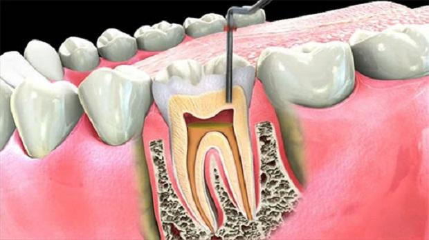 زمانی که دندان به دلیل عدم رعایت بهداشت دچار حفره میشود بافت پالپ آسیب دیده و التهاب پیدا میکند.