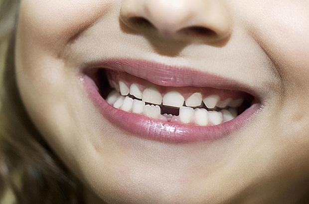 دندانهای فک پایین زودتر از فک بالا ریزش میکنند