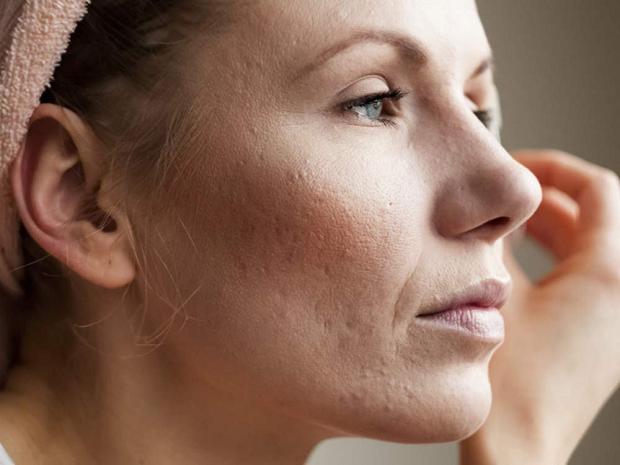 می توانید از این چای درمانگر برای شستشوی صورت استفاده کنید